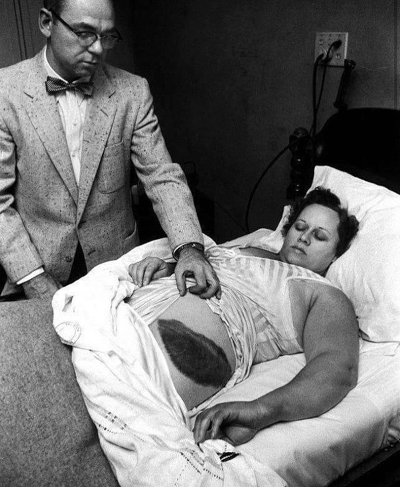 Анн Ходжес гэх эмэгтэй солиронд оногдсон цорын ганц хүн болон түүхэнд бичигджээ (1954)