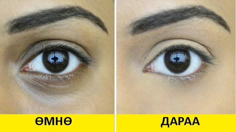 Нүдний доод зовхины хөхрөлтийг арилгах 9 арга