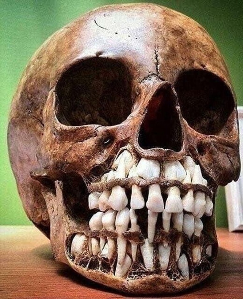 Сүүн шүд нь унаагүй хүүхдийн гавлын яс