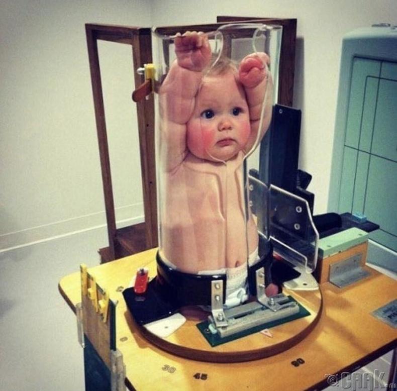 Нялх хүүхдийн рентген зургийг ингэж авдаг