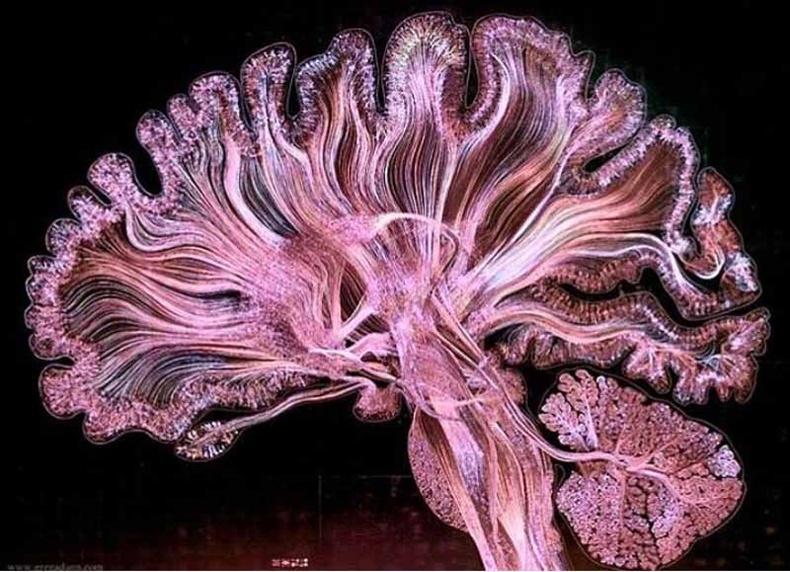 """""""MRI"""" туяагаар хүний тархин дахь мэдрэлийн судаснууд хэрхэн холбогддогийг харуулж байна"""