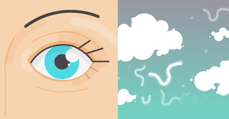 """Нүдний өмнө хөвдөг """"цагаан зүйлс"""" ямар учиртай вэ?"""