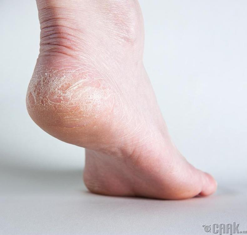 Хөлийн эврийг зөөрлүүлнэ