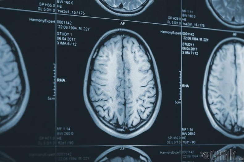 Баруун, зүүн тархитан гэж байдаггүй