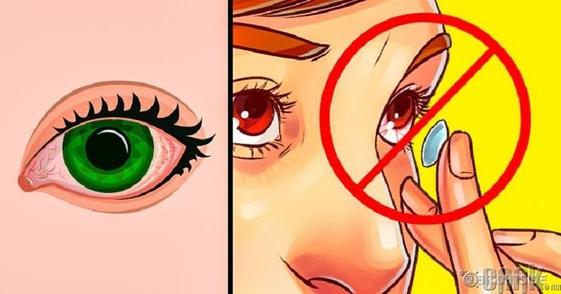 Нүдний шил нь линзнээс аюул багатай