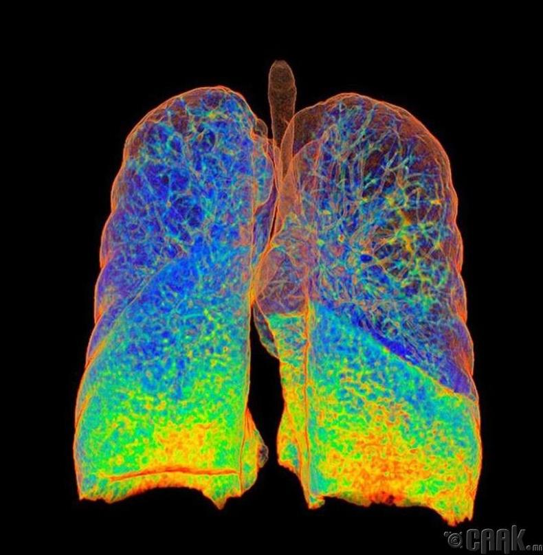 Тамхичны уушги компьютер томографийн зурагт