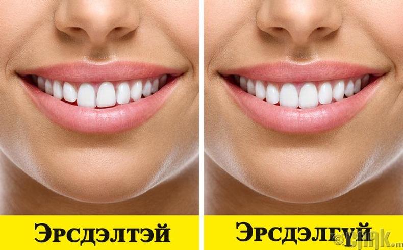 Шүдний асуудал