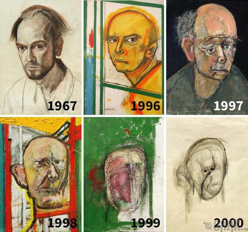 Альцгеймер өвчтэй хүний хөрөг зургаа зурсан явц