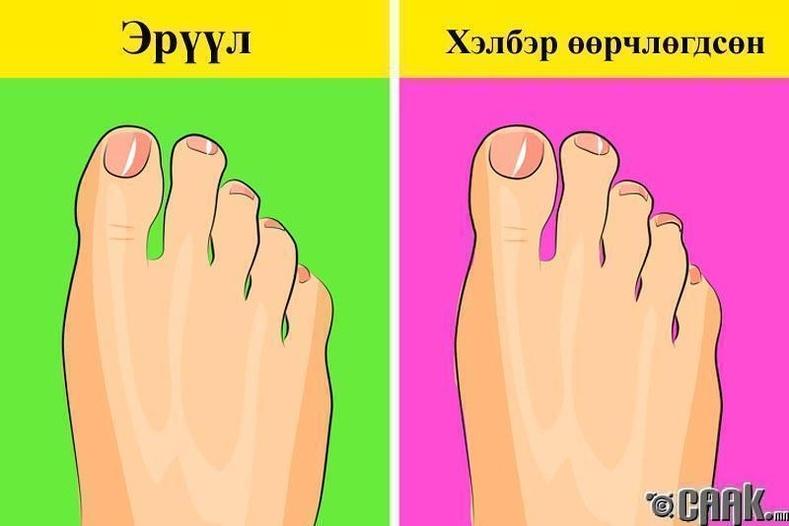 Хөлийн хурууны хэв өөрчлөгдөх