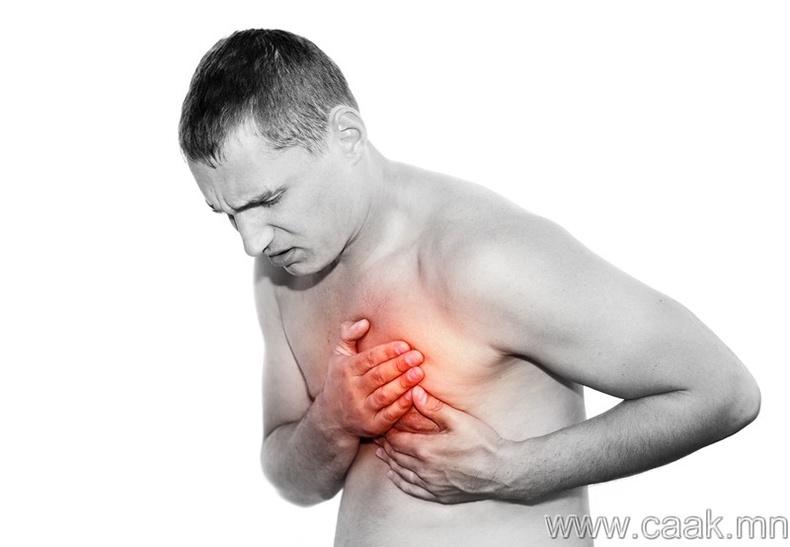 Зүрхний шигдээс өвчнөөс хамгаалагдана