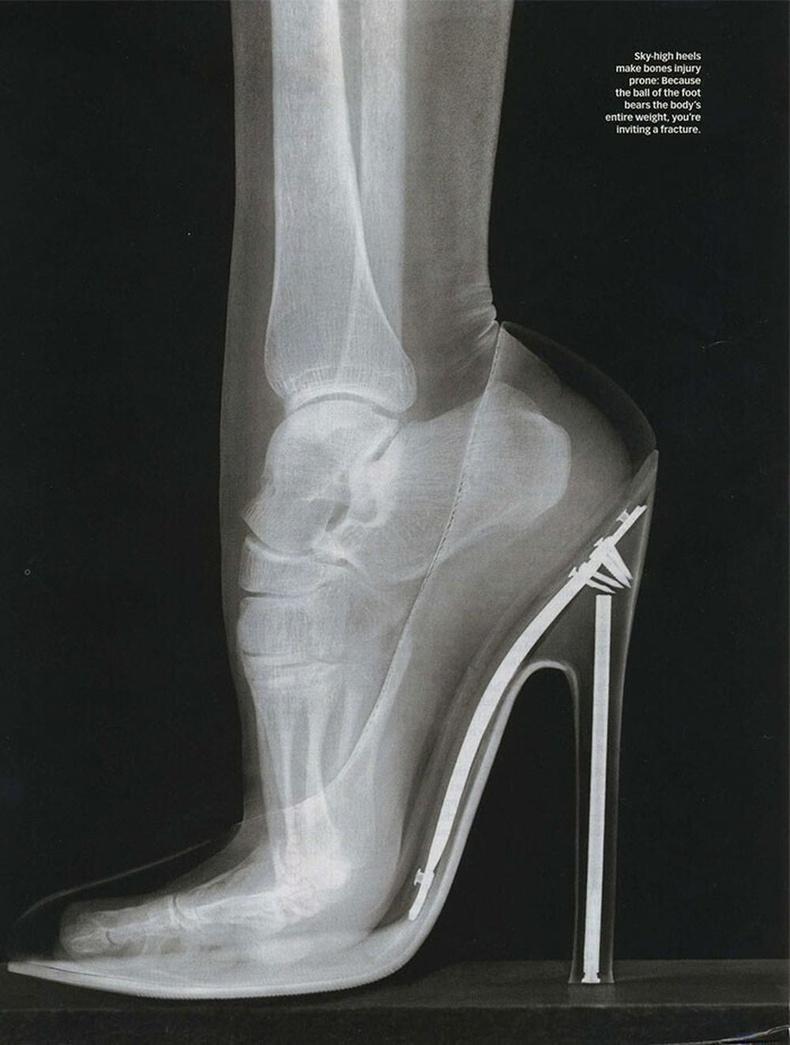 Эмэгтэй хүний хөлийн рентген