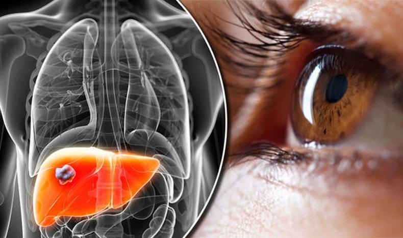 Элэг болон нүдний өвчнийг анагаах япончуудын нууц арга