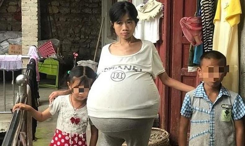 Өндгөвчний хорт хавдрын улмаас 40 кг гэдэстэй болсон эмэгтэй аврагджээ