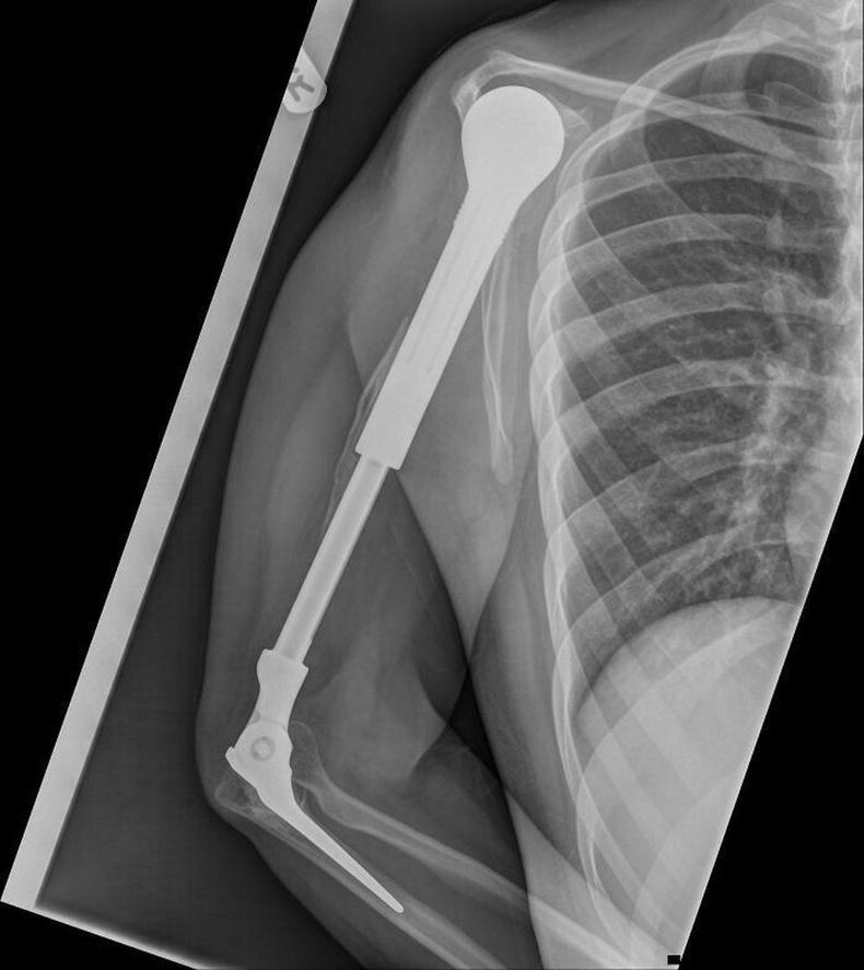 Метал суулгацтай гарын рентген зураг