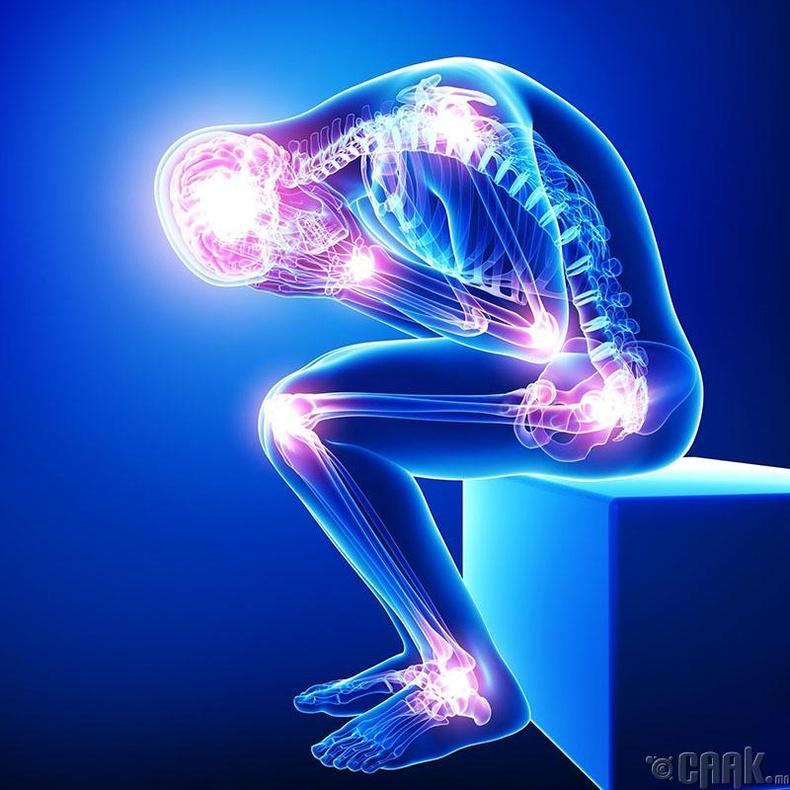 Яс болон үе мөчний өвчин