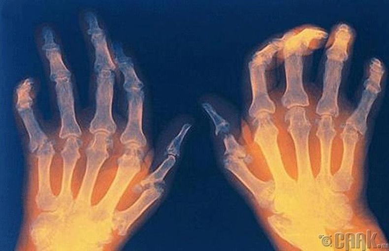 Үе мөчний үрэвсэл буюу артритээс сэргийлнэ