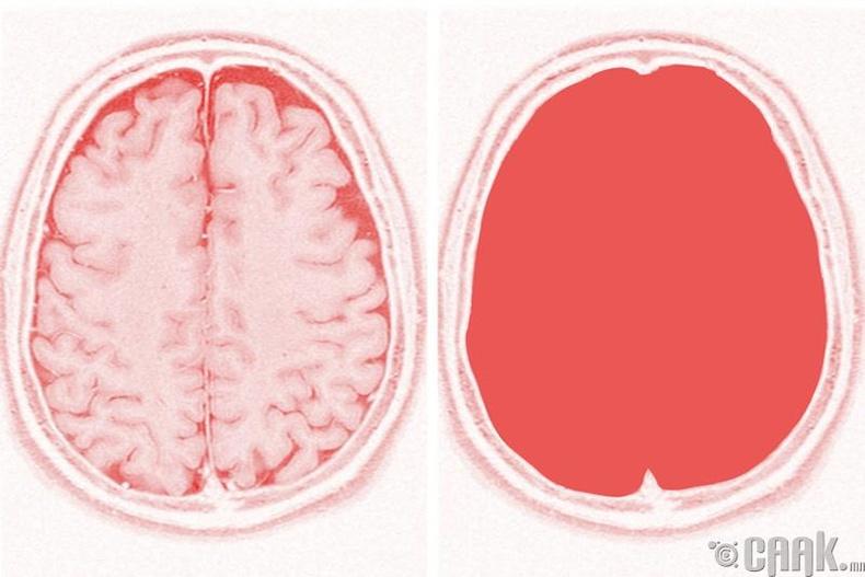 Хүний бие тархигүй бол юу хийж чадах вэ?