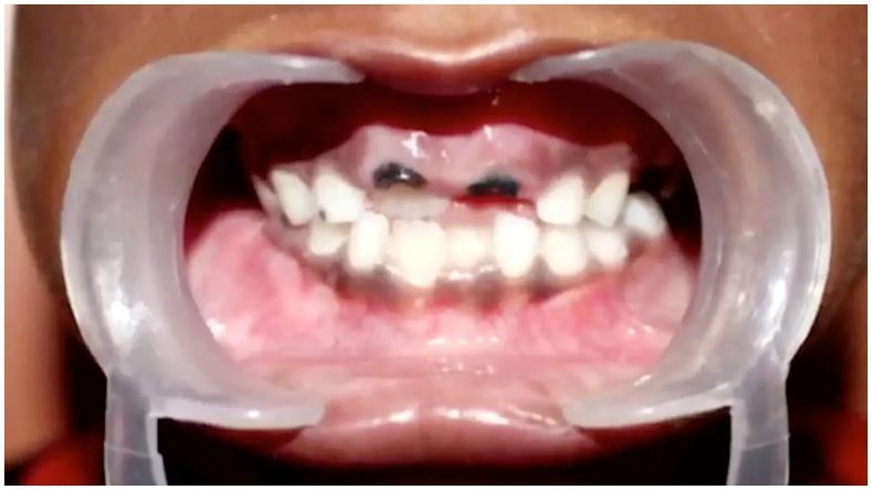 526 ширхэг илүү шүдтэй хүүгийн хачирхалтай хувь тавилан