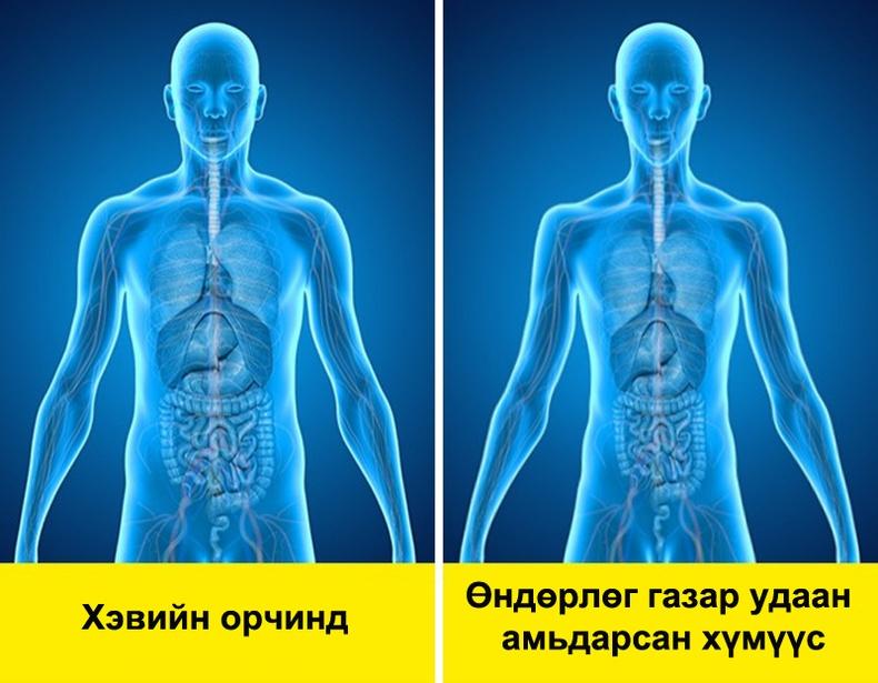 Өндөр даралттай газрын өвчин гэж юу вэ?