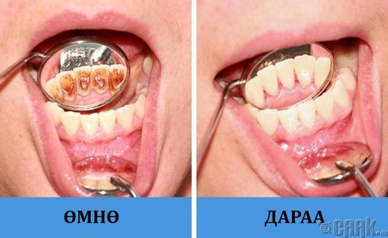 Шүдний чулуугаа авахуулдаггүй