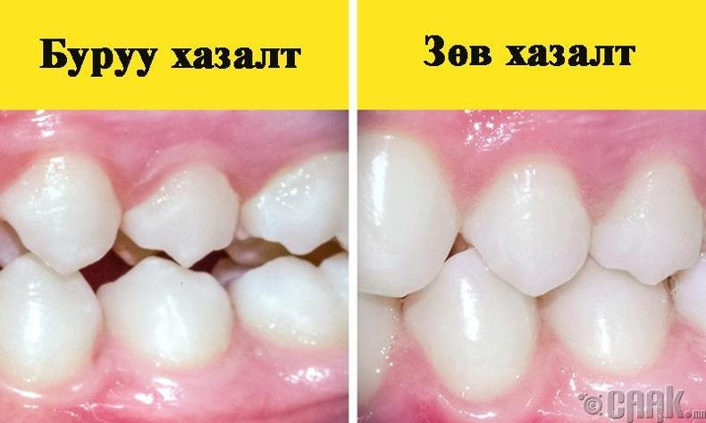 Шүдний аппаратыг зөвхөн доод шүдэндээ хийлгэж болох уу