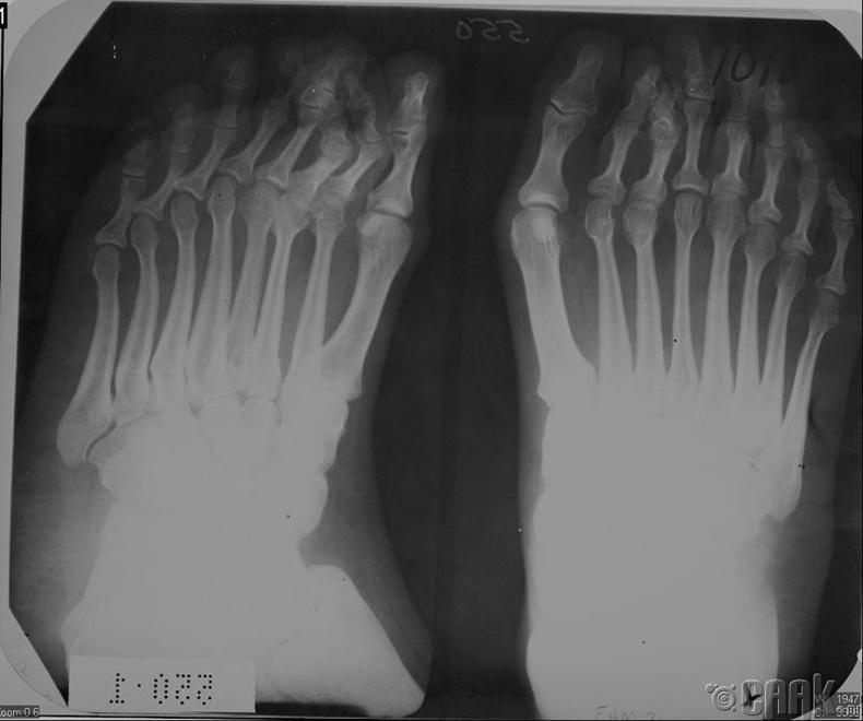 Полидактилиттай өвчтөний хөлний рентген зураг