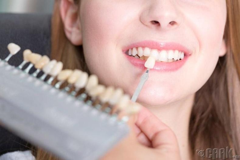 Хэрхэн шүдээ цайруулах вэ?