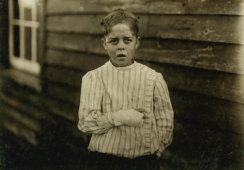 11 настай Жайлс Эдмунд Ньюсом, Хойд Каролина - Ээрмэлийн үйлдвэрт ажиллаж байхдаа гараа гэмтээжээ