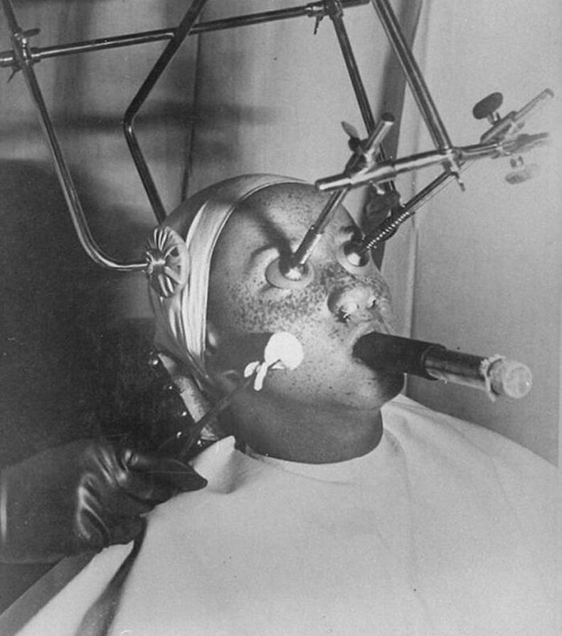 20-р зууны эхэн үед сэвх арилгах эмчилгээг ингэж хийдэг байв