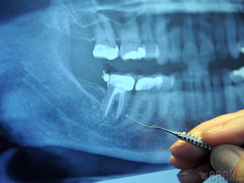 Шүд, эрүү заслын эмч