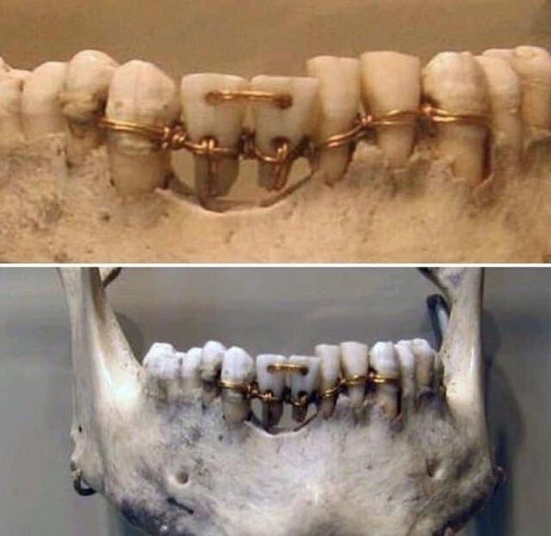 4000 жилийн настай шүдний аппарат
