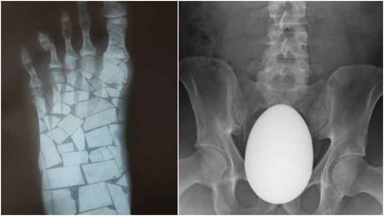 Айдас хүргэм рентген зургууд
