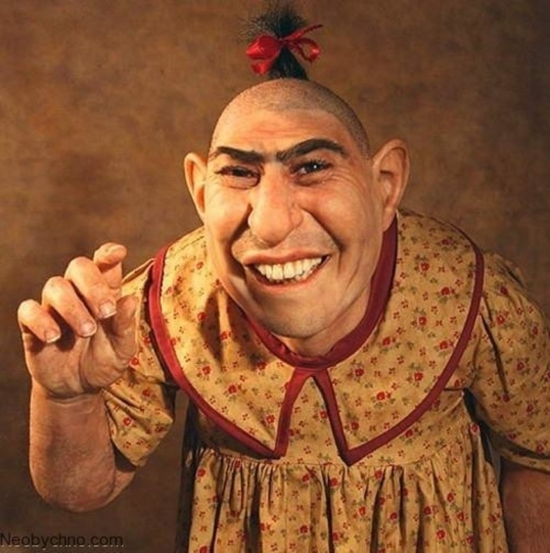 Шлитци Сёртис гэх жүжигчин бол микроцефали өвчнөөр өвчилсөн хамгийн алдартай хүн юм