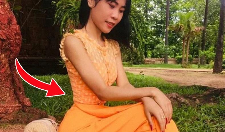 """""""Хүн шоргоолж"""" хочтой Мьянмар бүсгүй"""