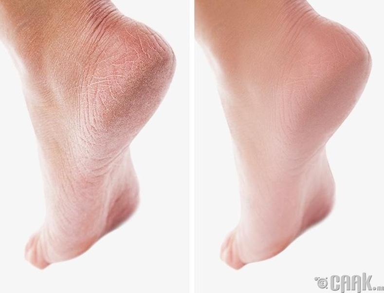 Хөлийн өсгийг зөөлрүүлнэ