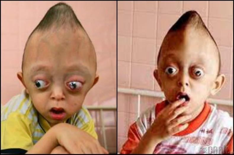 Вьетнамын өвөрмөц толгойт хүүхдүүд
