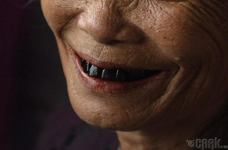 Хар шүд