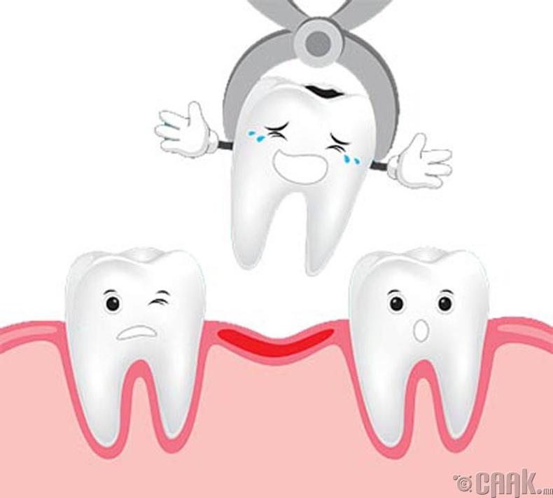 Шүдээ авахуулснаас хойш эхний цагуудад юу хийж болохгүй вэ?