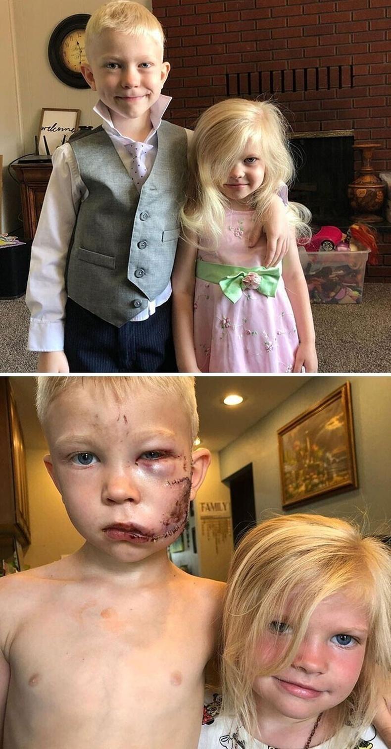 Галзуу нохойноос дүүгээ аварсан 6 настай ах