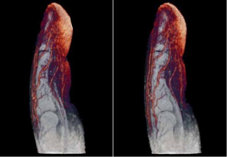 Хүний хуруун дахь судасны төвлөрөл
