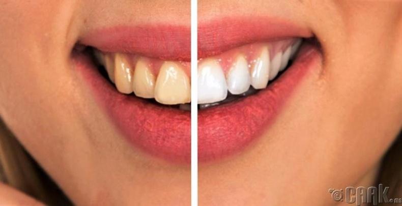 Шүдний эмчид тогтмол үзүүлэх