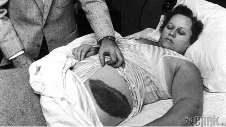 Солирт оногдоод амьд үлдсэн эмэгтэй
