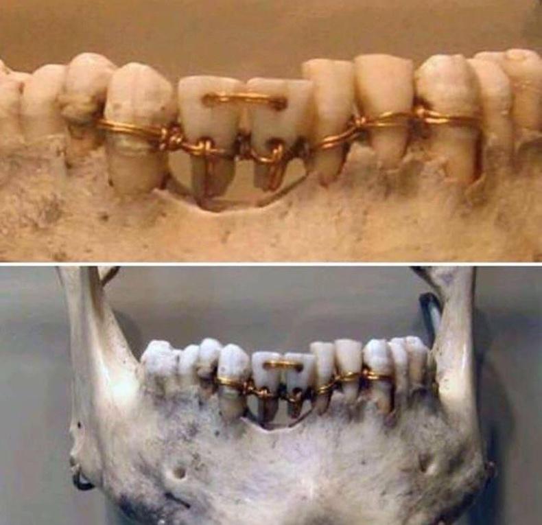 """4000 жилийн настай муммигийн шүдний """"аппарат"""""""