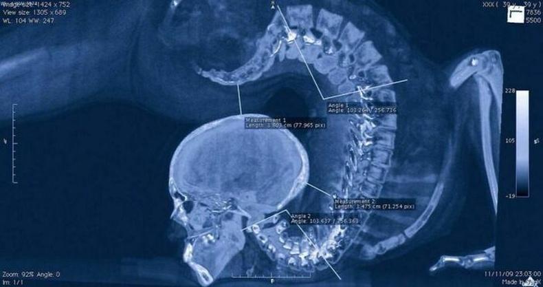Үзүүлбэр үзүүлж буй уран сайхны гимнастикчийн рентген зураг