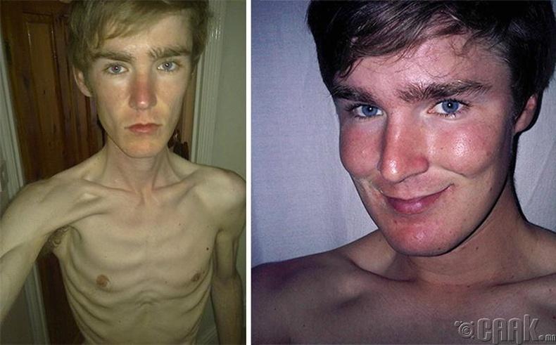 Анорексийн өмнө ба дараа