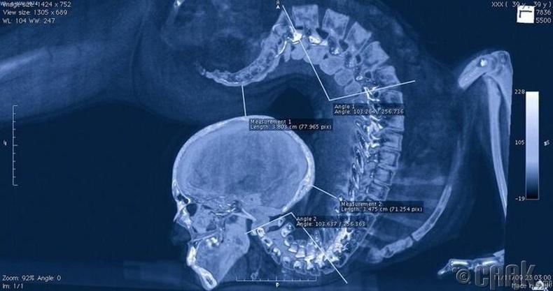Уран нугараачийн нурууг рентгенээр харвал