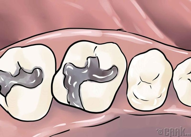 Шүд ломбодох