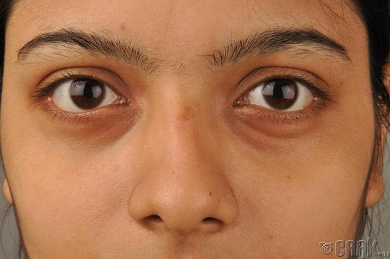 Нүдний хаванг бууруулна