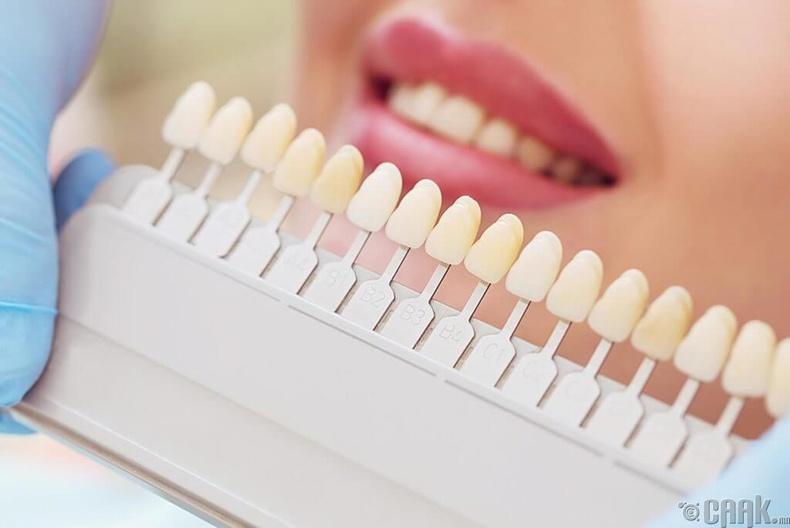 Шүд цайруулагч
