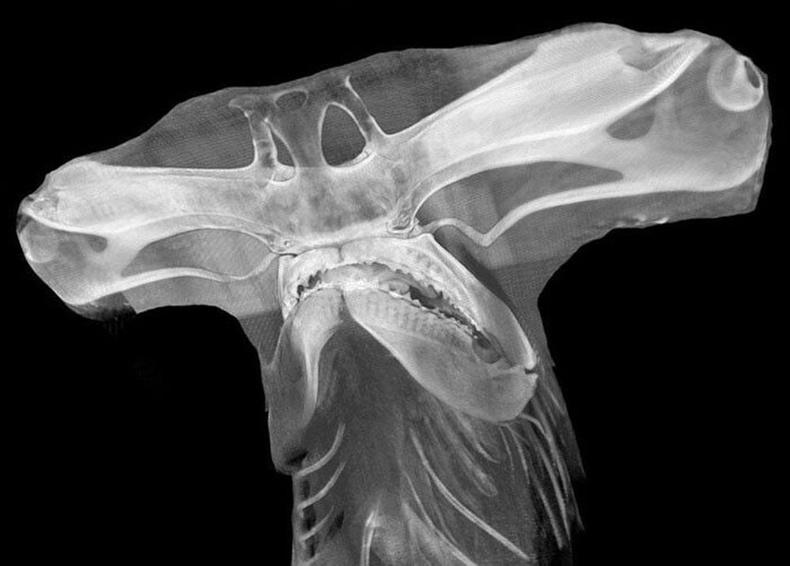 Алхан толгойт халимны рентген зураг